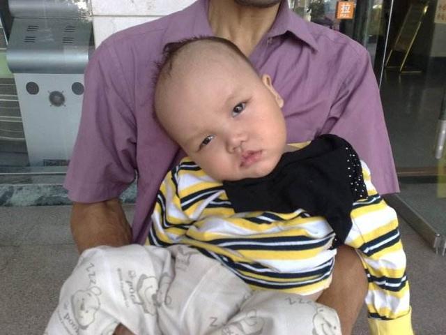 孕期甲减宝宝易患上呆小症,及时补充3种营养,拒绝变成笨宝宝
