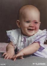 宝宝身上有胎记是怎么回事,孕期要注意