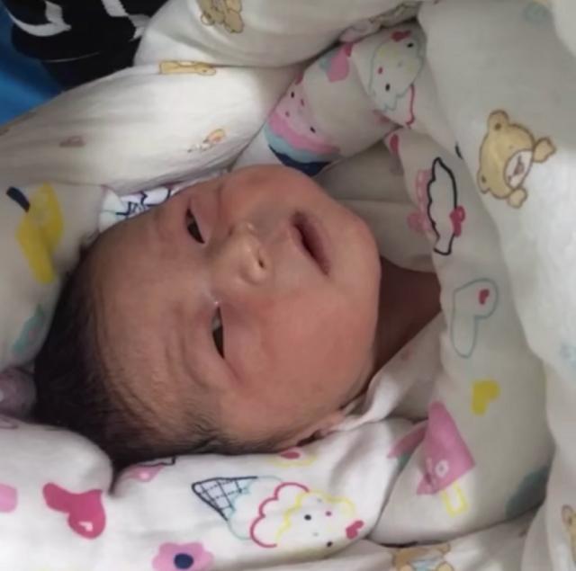 为什么有的新生儿出生就没有黄疸是跟孕妇在怀孕期间的习惯有关