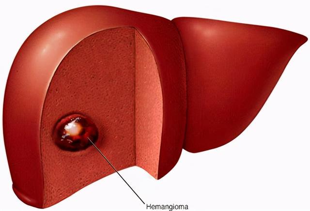 发现肝血管瘤,可以不用管吗 这份肝血管瘤自述,看完你就知道了